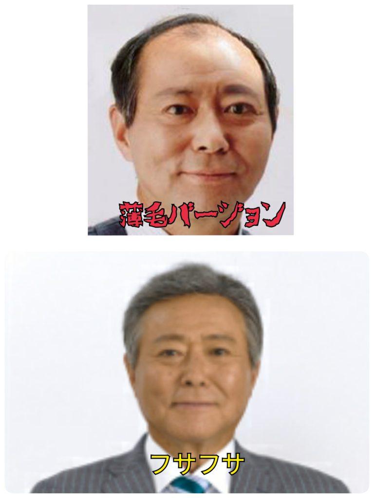 小倉智昭 薄毛 フサフサ 植毛
